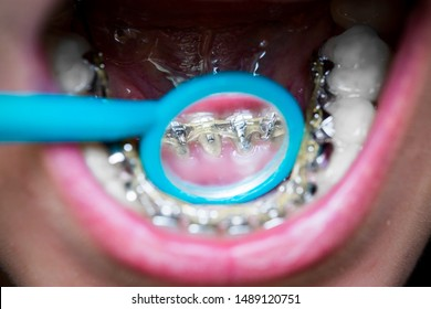girl shows in the dental mirror invisible braces, lingual brackets, smile