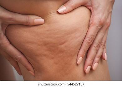 Girl shows holding and pushing the skin of the legs cellulite, orange peel. Treatment and disposal of excess weight, the deposition of subcutaneous fat tissue