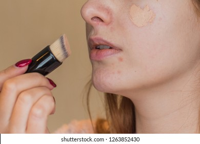 Girl take  concealer on face, acne skin problem, face make up covered and Concept of skin problems