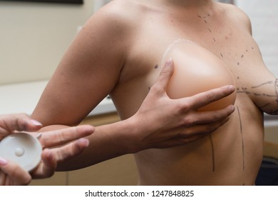 The girl, who wants to correct sagging breasts, at the reception at the plastic surgeon. She tries on the desired breast using a silicone mold. The markings on the breast of the woman.