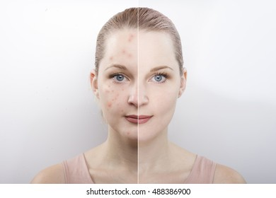 the girl's face before and after. difference after cosmetic procedures. Treatment of skin diseases. causes of acne. cleansing.