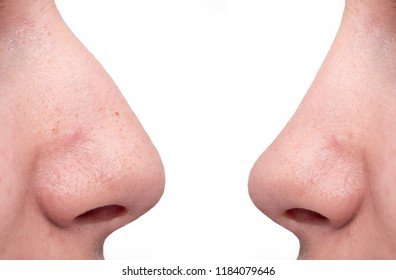 Girl's nose in profile on a white background, nose plastic, plastic surgery, humpbacked curve, rhinoplasty uneven skin, comedones pimples, face cleaning