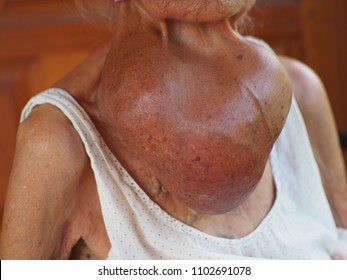 Goiter from old woman, lasting for 25 years. It's doesn't hurt ,just simple Goiter.