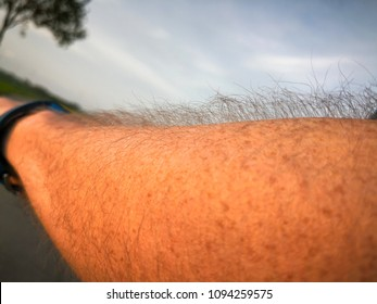 Goose bumps on male arm