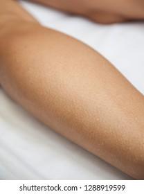 Goosebumps on leg after massage