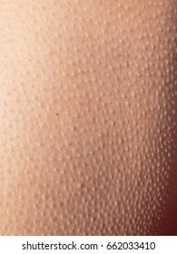 Goosebumps on the skin