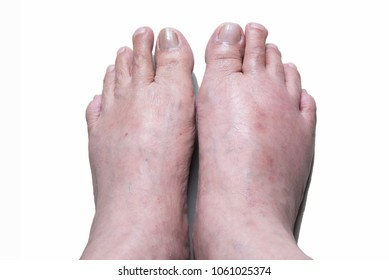 gout effect,compare feet gout sickness, right foot is swelling the other foot is normal in white background