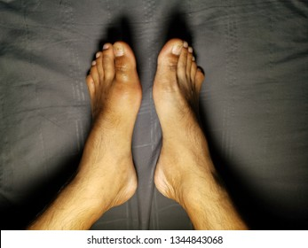 Gout is one of the arthritis groups caused by the accumulation of uric acid crystals in various ways. Resulting in patients with pain, swelling, redness in the acute area Which is common in men.