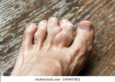 gouty toes. toes affected by Gout - a disease in which defective metabolism of uric acid. Rheumatoid polyarthritis on foot. valgus deformity of the toes