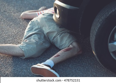 Graphic imagery of single child in shorts with bent bloody leg in front of stopped car