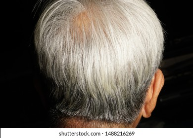 Gray hair on the head of the elderly's scalp is a photograph of the top and near angle.