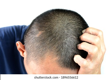 Gray hair problems in men, asian man with gray hair, white hair or hair loss problem.
