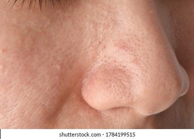 黒い ブツブツ 鼻