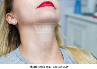 Great concept of aesthetic treatment of jowls, injection of deoxycholic acid.