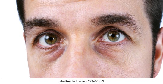Great detail macro of a very tired or sick middle aged man, with wrinkles, sun damage, veins and dark circles under the eyes showing, no retouching, natural or candid.