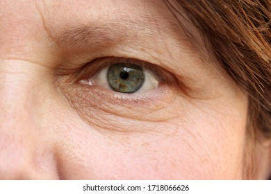 green eye with brown spots on the face of an elderly woman, small wrinkles on the eyelids, overhang, the concept of age-related changes in human skin