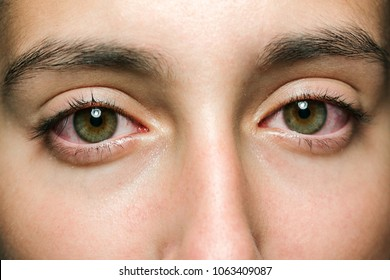 green eyes of a teenager inflamed and with red veins