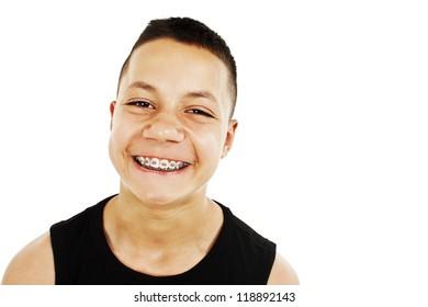 Grimace of teenage boy with braces. Isolated on white background