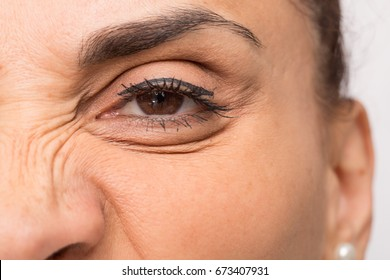 Grimace that show facial wrinkles