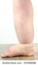 Gross edema of leg and foot showing distortion and discoloration, with lymph fluid seeping from minor scratch