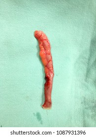 gross specimen of vermiform appendix after it was appendectomy due to acute appendicitis .