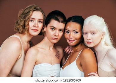 Gruppe von multiethnischen Frauen mit verschiedenen Arten von Haut posiert zusammen im Studio. Konzept der Körperpositivität und Selbstannahme