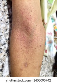 Group of Small red spots or petechiae at cubital fossa area of forearm in Asian, Burmese young boy in clinic. It shows Hess test or tourniquet test is positive and at least Grade 1 of dengue desease.
