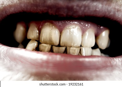 Grungy extreme closeup of human set teeth