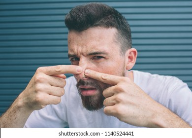 Guy is squeezing pimples on his nose. He is looking close on camera. Isolated on striped and blue background.