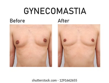 Gynecomastia. Before and after surgery
