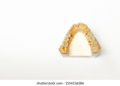 gypsum model of the teeth of the lower jaw with ceramic teeth. false teeth molars and premolars. White background