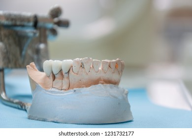 Gypsum Stomatologic human jaws. Ceramic-metal crown on plaster model on blurred background of dental office.