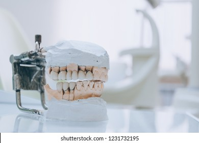 Gypsum Stomatologic human jaws. Ceramic-metal crown on plaster model on blurred background of dental office. White tone