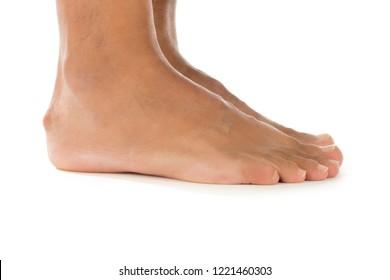 Haglund's Deformity - Bony Enlargement on the Back of the Heel