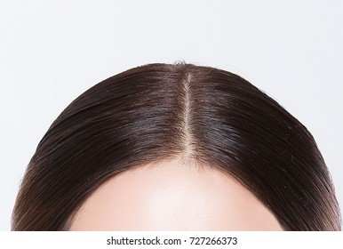 hair dandruff women