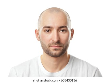 Hair loss concept. Portrait of young bald man on white background