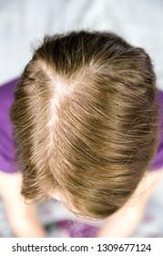 Hair loss female. Alopecia areata