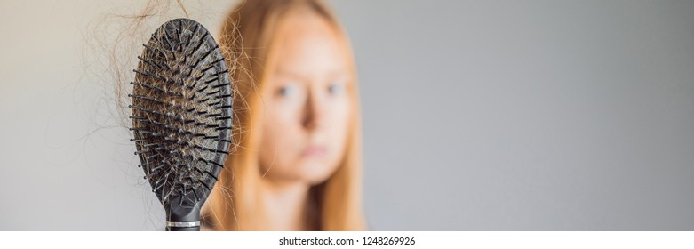 Hair Loss Banner Images Stock Photos Vectors Shutterstock