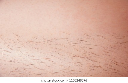 Hair removal concept, before and after