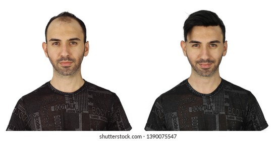hair replacement photo and hair before and after