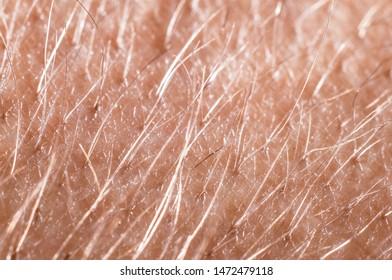 Hair with skin on a human hand close-up, macro shot