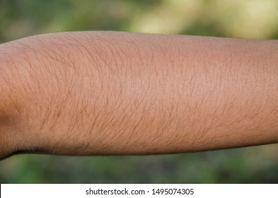 Hairs on the arm. Human hairs. Arm hairs.