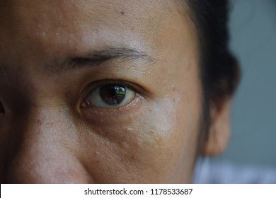 half  Asian female oily face  that have acne spot and dark surgery