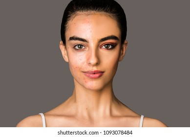 Half face acne skin problem, half face make up covered and before and after beauty skin close up concept