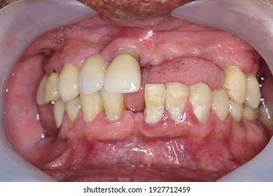 Half teeth loss at upper arch and plaque formation at lower arch