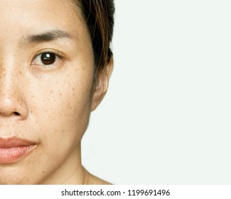 Half-face Portrait Young Asian Woman with Freckle Face Skin