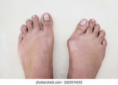 Hallux valgus, bunion in asian foot on floor.Abnormal of foot shape from deformity joint connecting the big toe.