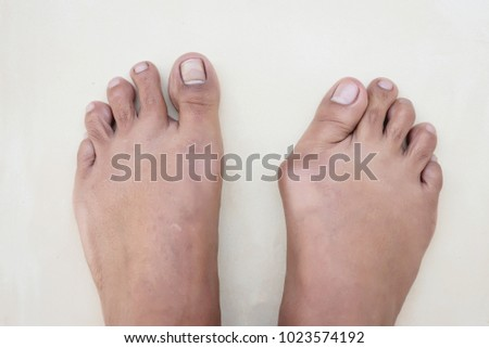 pictures Asian foot