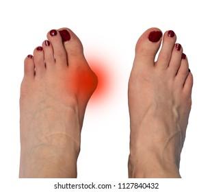 Hallux valgus, bunion in female feet on white background