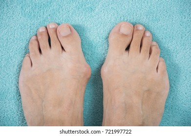 Hallux valgus, bunion in a leg on a blue soft background